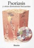 Tapa del libro Miniatlas Psoriasis y otras Dermatosis Frecuentes